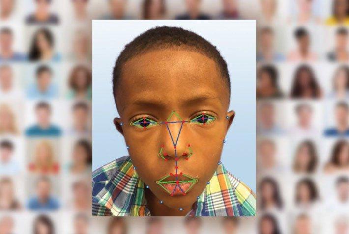 El reconocimiento facial podría salvar vidas detectando enfermedades 1